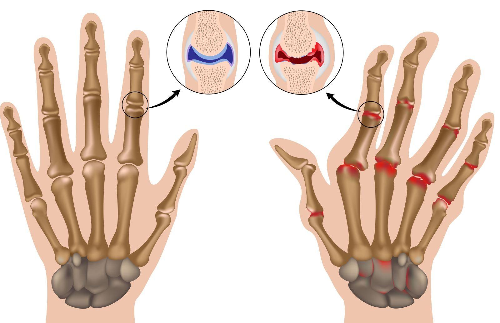 Изображение - Магниты для суставов в аптеках artrit