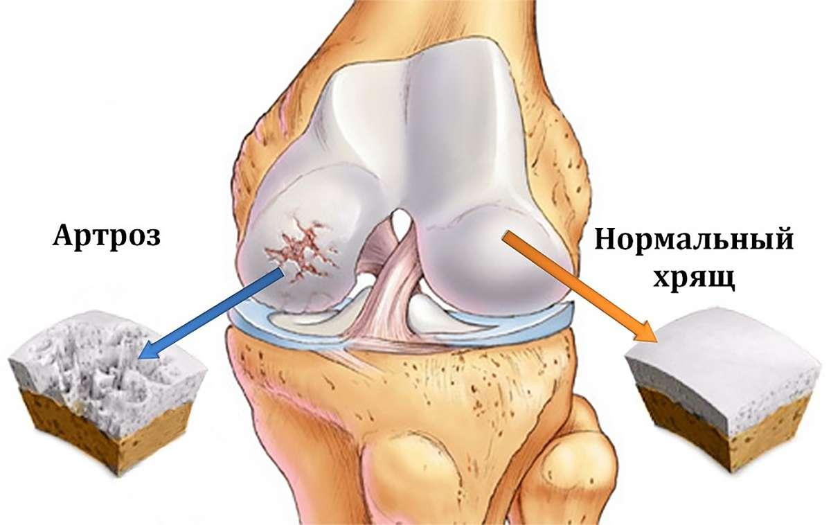 Изображение - Магниты для суставов в аптеках artroznye-izmeneniya-v-kolennom-sustave