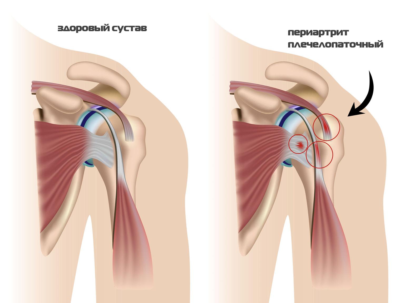 Изображение - Магниты для суставов в аптеках plechelopatochnyj-periartrit